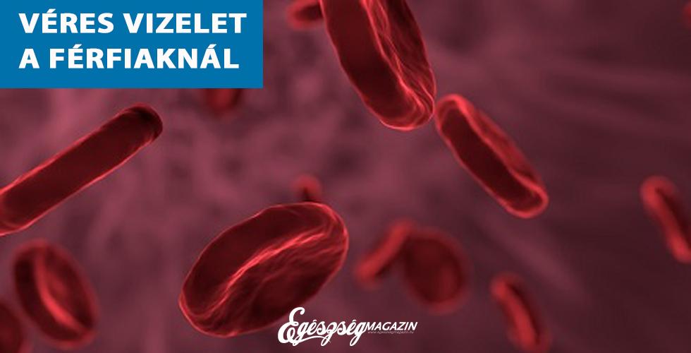 Ha véres a vizelet | Háziorvosi rendelő Veresegyház, Dr. Bedő Csaba és Dr. Kósa Tünde